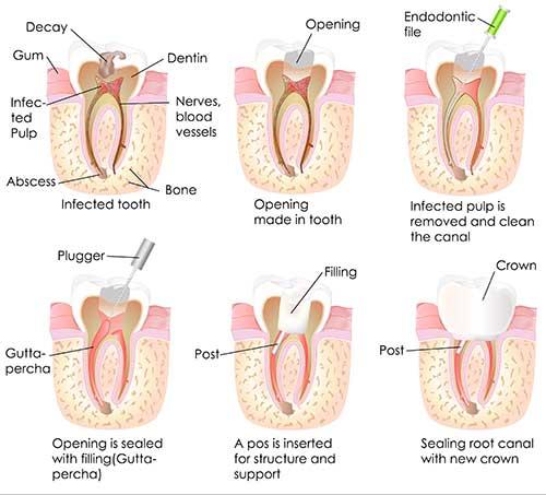 Root Canal Therapy in Modesto