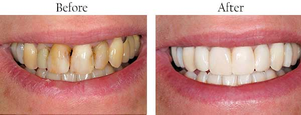 Before and After Dental Images Stockton