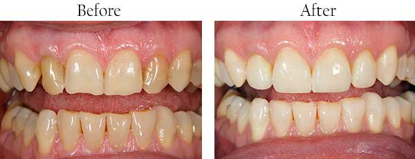Modesto Before and After Teeth Whitening